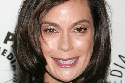 F) Droopy Smile (Teri Hatcher)